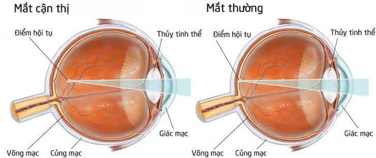 Bệnh cận thị là gì? Nguyên nhân và giải pháp