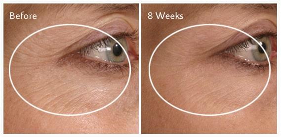 Hiệu quả sử dụng của Kem Dưỡng Mắt Nọc Rắn Balance Active Formula Snake Venom Eye Cream 15ml