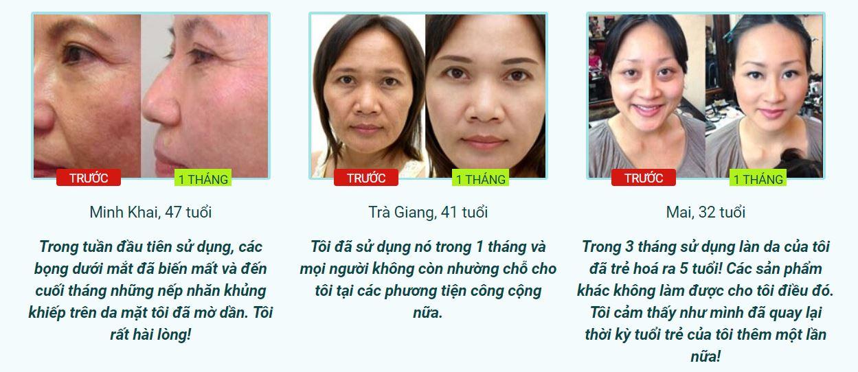 khách hàng Kem Dưỡng Mắt Nọc Rắn Balance Active Formula Snake Venom Eye Cream 15ml