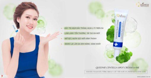 Kem trị mụn mờ sẹo Queenie Centella Spot 20ml