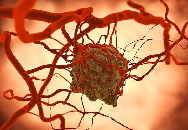 Fucoidan - phòng ngừa và điều trị ung thư