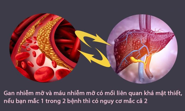 Viên uống giảm mỡ máu, mỡ gan và thải độc gan Lipitas 60 viên Nhật Bản