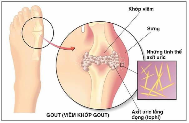 Viên uống hỗ trợ điều trị Gout Anserine Minami Nhật Bản 240 viên