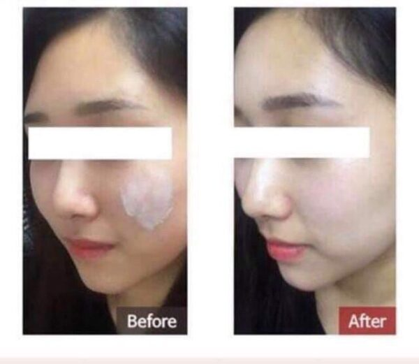 Kem trị nám tàn nhang Melasma-X 3D Whitening Clinic Cream Hàn Quốc 40ml